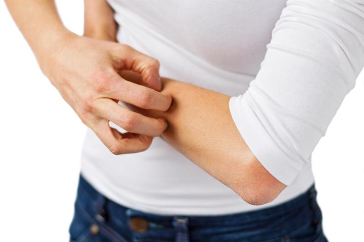 dermatitis en el glande fotos